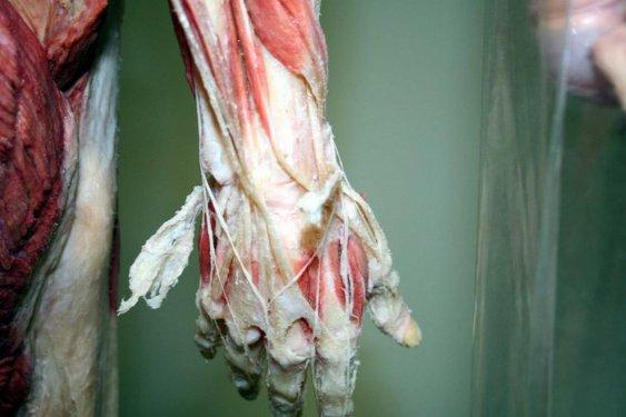 Konyada kadavra ile anatomi dersi 5