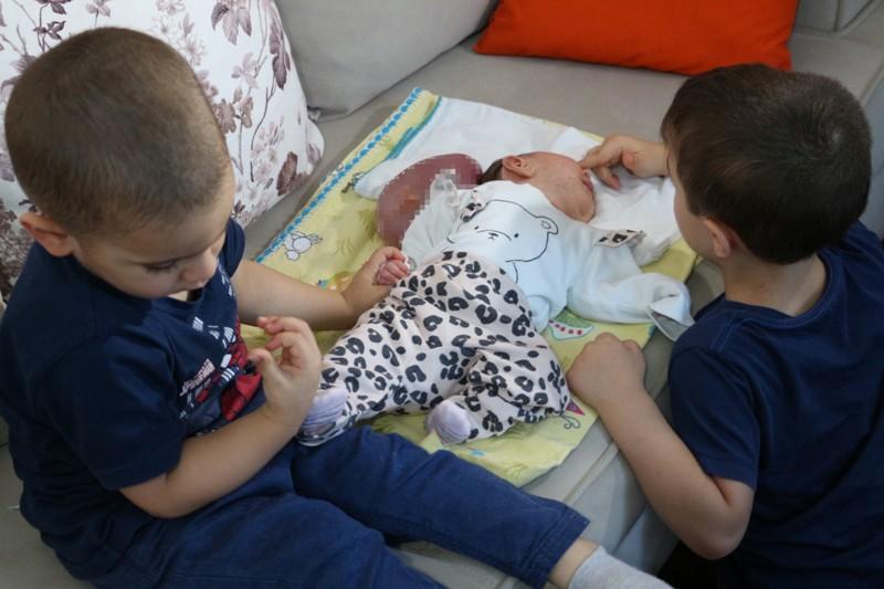 """Doktorların """"Ölür"""" dedikleri 2 kafalı doğan bebekleri için çare arıyorlar"""
