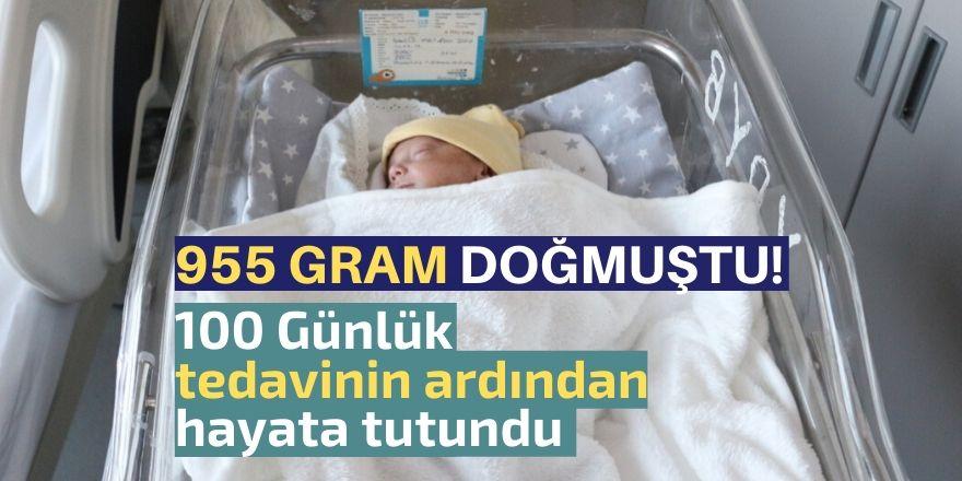 955 gram doğdu, hayata tutundu!