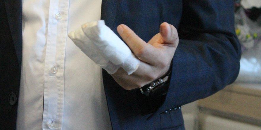 Kopan iki parmağı ameliyatla yerine dikildi