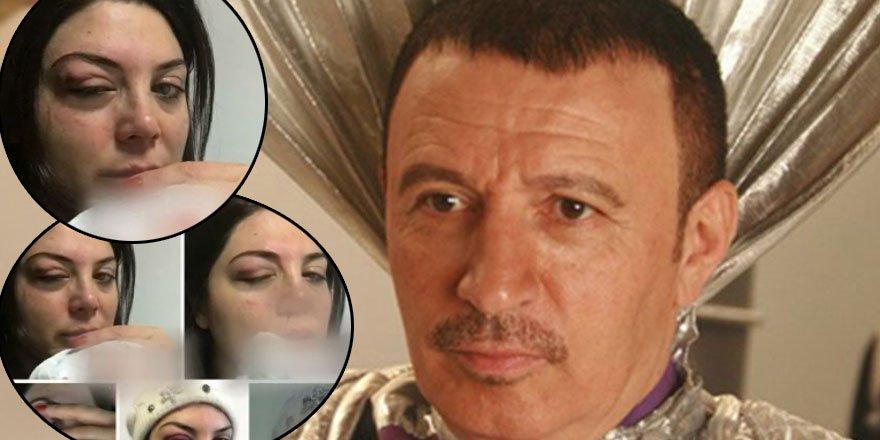 Mustafa Topaloğlu eşi Derya Topaloğlu'nu dövdü!