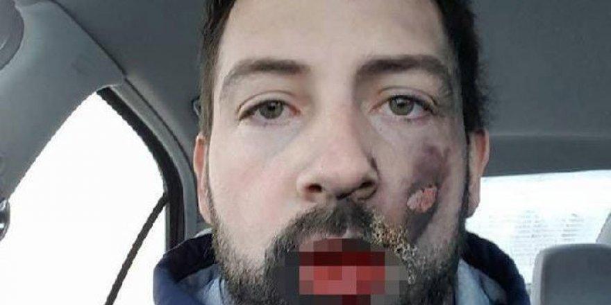 Elektronik sigara yüzünde patladı!