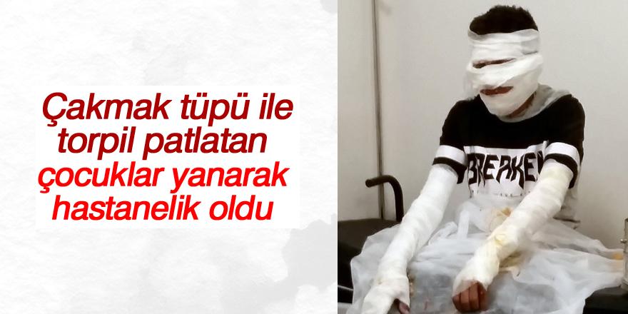 Çakmak tüpü ile torpil patlatan çocuklar yanarak hastanelik oldu