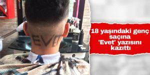 18 yaşındaki genç saçına 'Evet' yazısını kazıttı