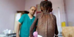 Yemen'de yaklaşık 85 bin çocuk yetersiz beslenmeden ölmüş olabilir
